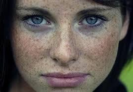 La tache de pigment sur la peau se gratte se desquame